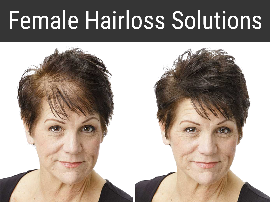 Female Hairloss Solutions