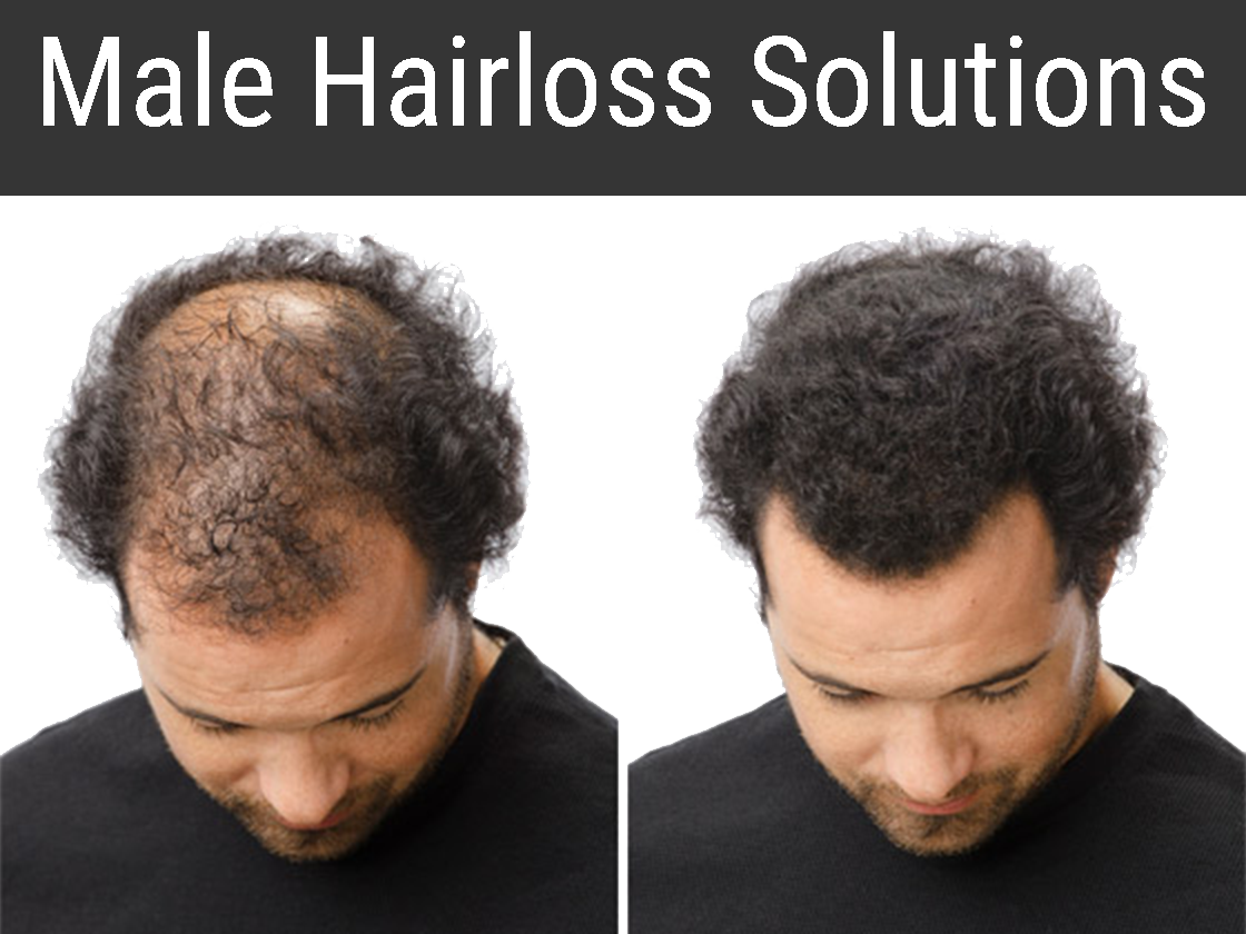 Male Hairloss Solutions